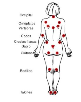 localización úlceras por presión