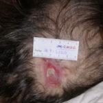 Tras 3 meses de evolución UPP grado 2 zona occipital