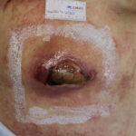 Tras 2 semanas de ingreso hospitalario UPP no estadiable espalda