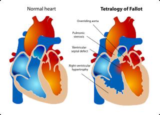 Cardiopatía Congénitas