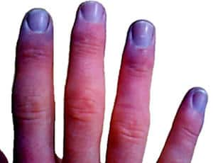 dedos cianóticos
