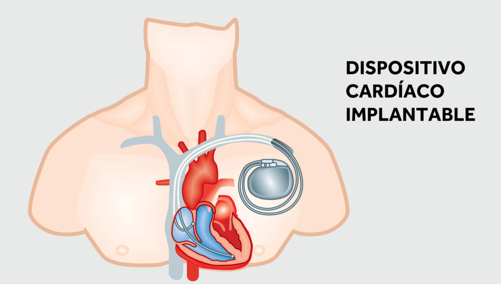 Dispositivo Cardíaco Implantado