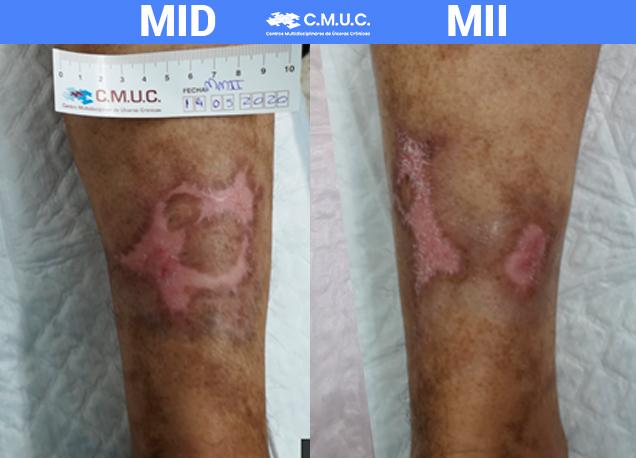 caso clínico epitelización 3 meses