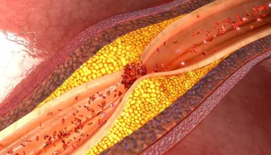 enfermedad tabaco arterial