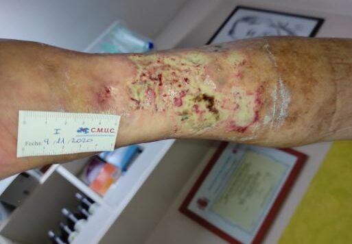 Imagen 4_entrada caso clinico