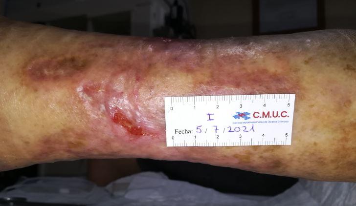 Imagen 6_entrada caso clinico