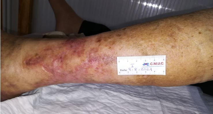 Imagen 7_entrada caso clinico