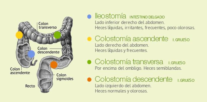 tipos de ostomías